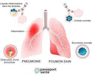 Pneumonie: comment savoir si la rhinite est une complication?