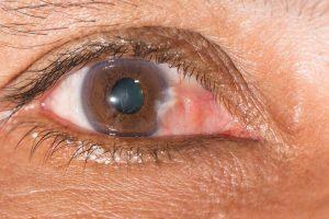 Pourquoi l'œil pince-t-il, quand indique-t-il une maladie?