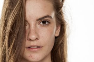 C' est pourquoi vous devez prendre soin des boutons adultes, de l'acné en été!