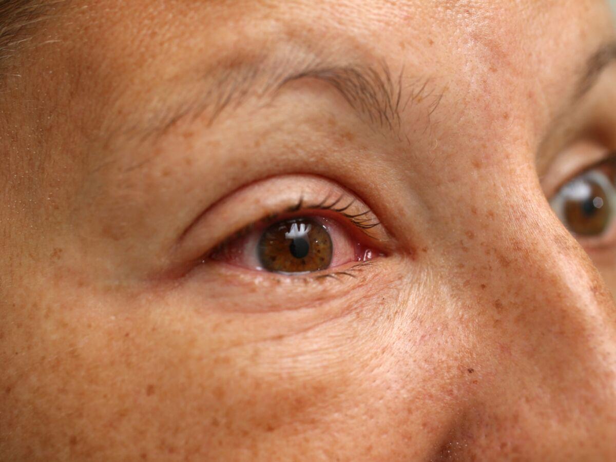 8 bons antiseptiques pour votre peau
